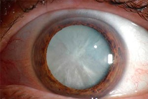 Image result for Cataract